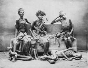 starvation symptoms